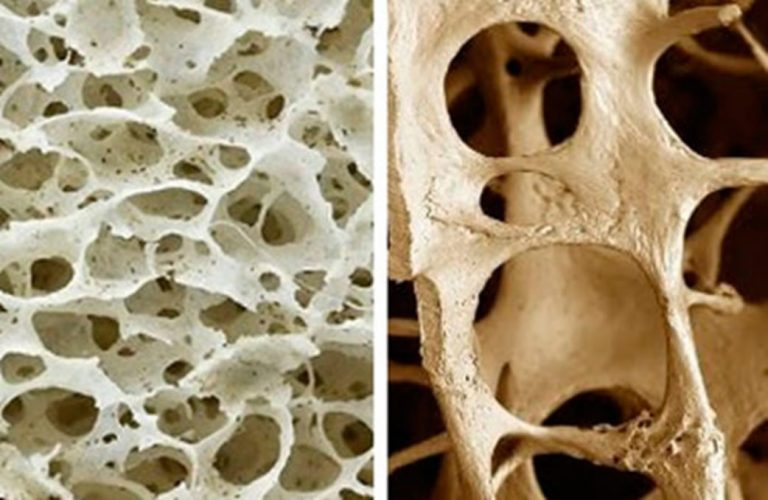 osteoporosis 3