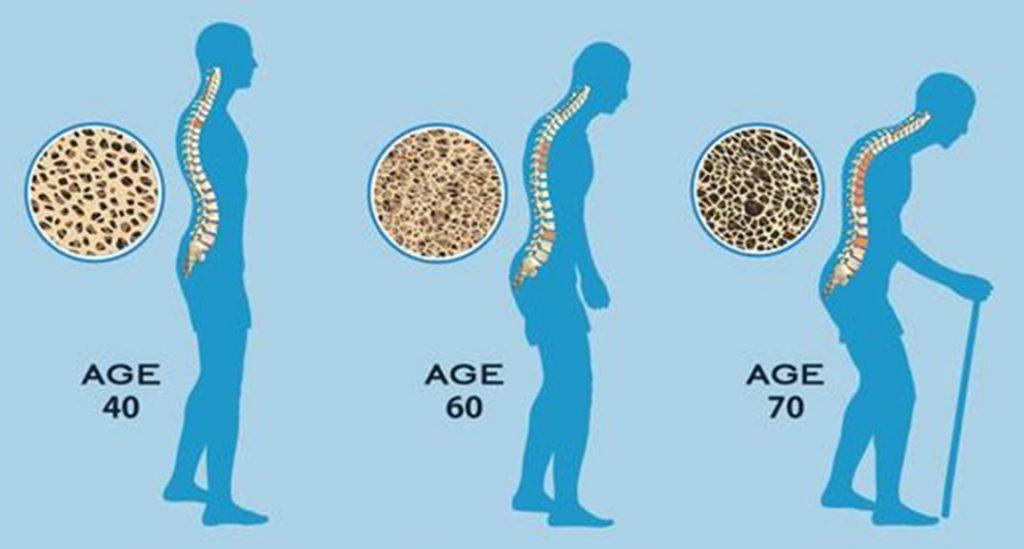osteoporosis 4